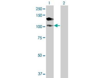 Mouse Anti-DHX16 Antibody