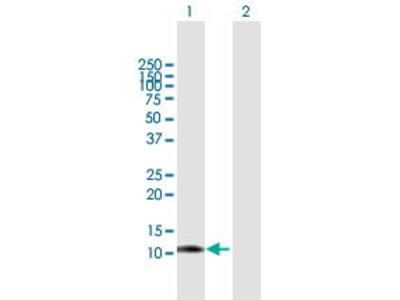 Mouse Anti-LGALS1 Antibody