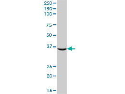 Mouse Anti-AKR1C2 Antibody