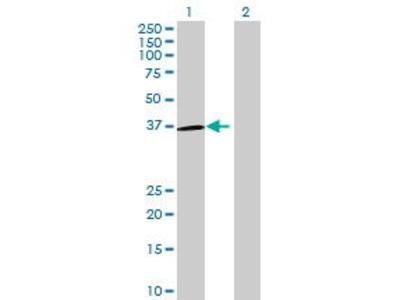 Mouse Anti-OR5H1 Antibody