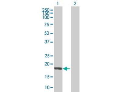 Mouse Anti-NME6 Antibody