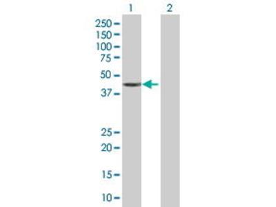 Mouse Anti-SAP30BP Antibody