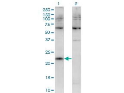 Mouse Anti-CMTM4 Antibody