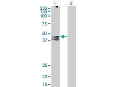 Mouse Anti-AVPR1A Antibody