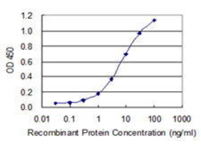 Mouse Anti-ZDHHC8 Antibody