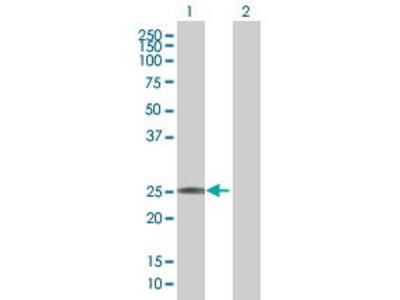Mouse Anti-MGC2474 Antibody