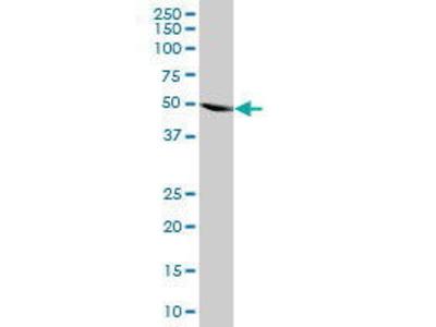 Mouse Anti-HARS Antibody