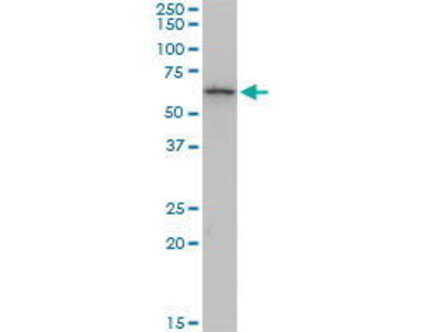 Mouse Anti-KRT6B Antibody
