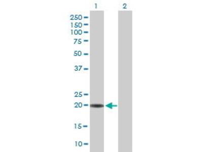 Mouse Anti-RAX2 Antibody