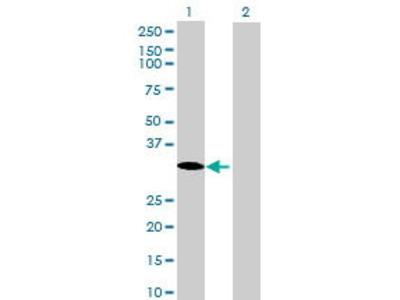 Mouse Anti-THAP8 Antibody
