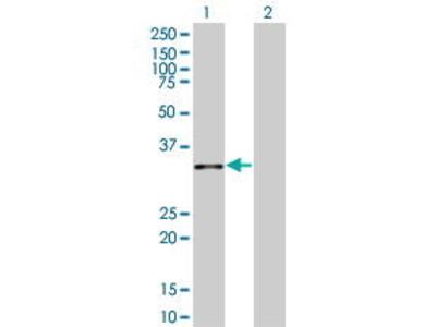 Mouse Anti-ANXA10 Antibody