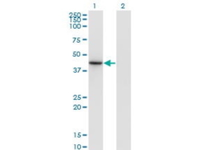 Mouse Anti-NEUROD6 Antibody