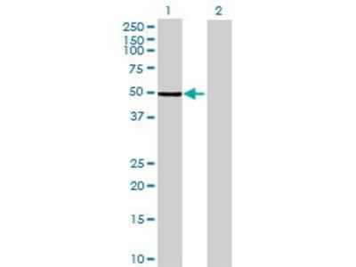 Mouse Anti-PRKAR2A Antibody