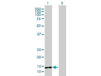 Mouse Anti-PLA2G2E Antibody