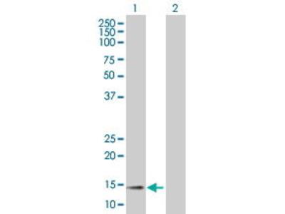 Mouse Anti-CCL11 Antibody
