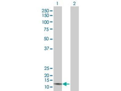 Mouse Anti-CMTM1 Antibody
