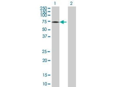 Mouse Anti-PRKCZ Antibody