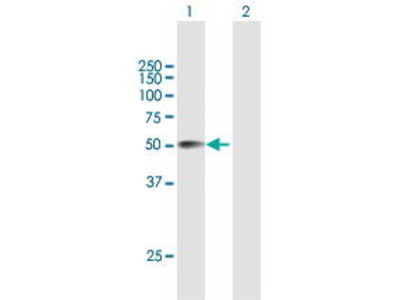 Mouse Anti-CRISPLD2 Antibody