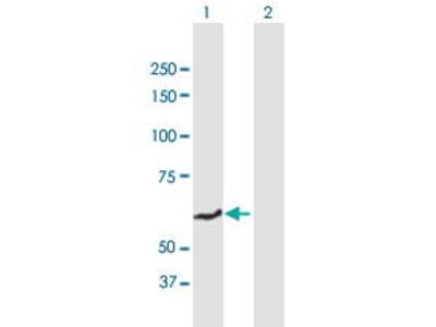 Mouse Anti-SLC40A1 Antibody