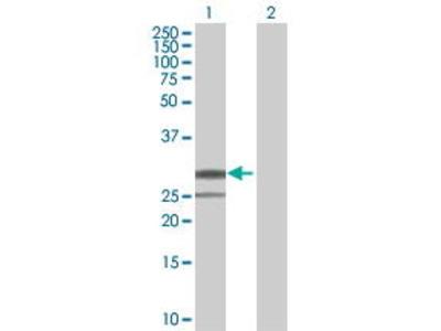 Mouse Anti-PI15 Antibody