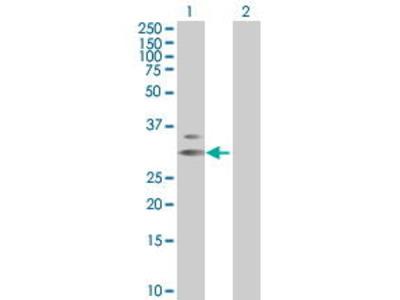 Mouse Anti-ECH1 Antibody
