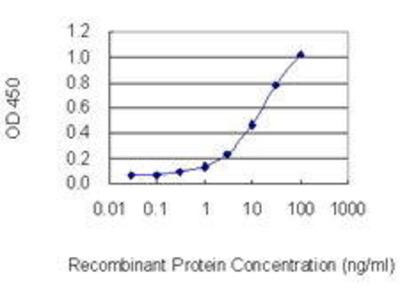 Mouse Anti-TRPC1 Antibody