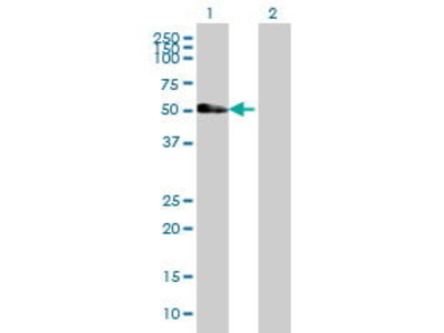 Mouse Anti-HS1BP3 Antibody