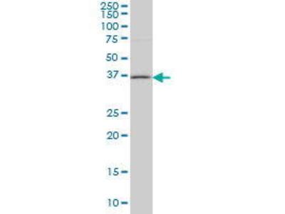 Mouse Anti-HSD17B1 Antibody