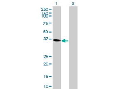 Mouse Anti-RP11-311P8.3 Antibody