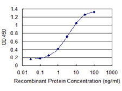 Mouse Anti-MEFV Antibody