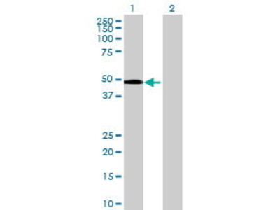 Mouse Anti-C6orf151 Antibody