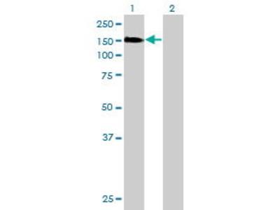 Mouse Anti-ESF1 Antibody