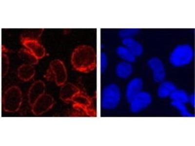 Rabbit Anti-Gp210 Antibody