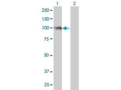 Mouse Anti-FOXM1 Antibody