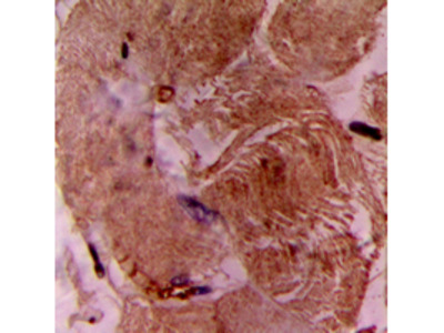 TNNI3 / Cardiac Troponin I Antibody