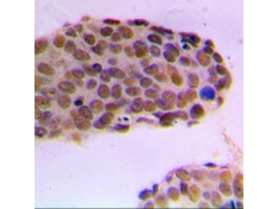 ZMYND8 / RACK7 Polyclonal Antibody