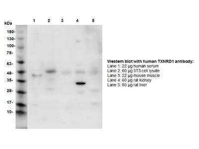 Thioredoxin Reductase 1 (TXNRD1) Antibody