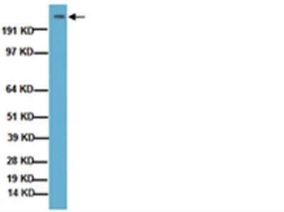 Anti-Huntingtin Protein, a.a. 181-810, clone 1HU-4C8