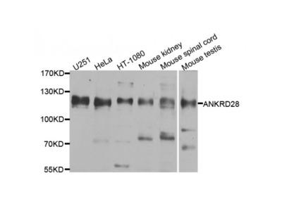 Anti-ANKRD28 antibody