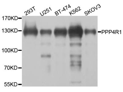 Anti-PPP4R1 antibody (STJ110659)