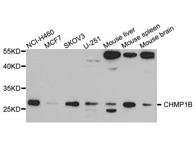 Anti-CHMP1B antibody (STJ110538)