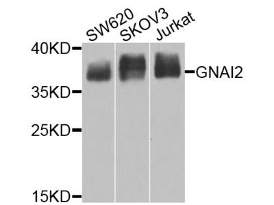 Anti-GNAI2 antibody