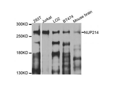 Anti-NUP214 antibody