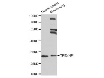 Anti-TP53INP1 antibody