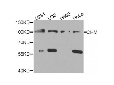 Anti-CHM antibody