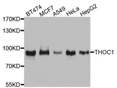 Anti-THOC1 antibody (STJ110478)