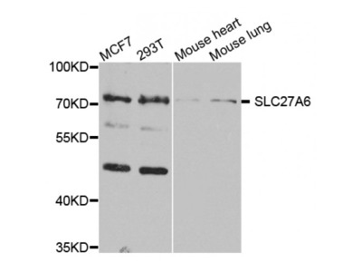 Anti-SLC27A6 antibody