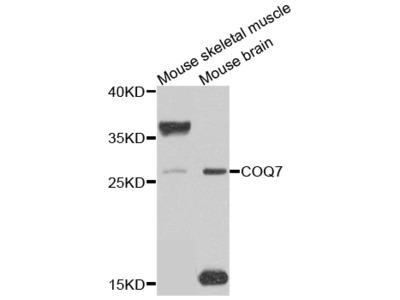 Anti-COQ7 antibody (STJ110079)