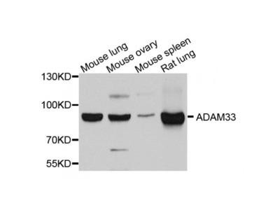 Anti-ADAM33 antibody