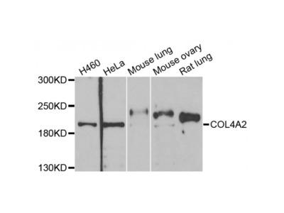 Anti-COL4A2 antibody